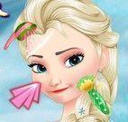 Elsa spa limpeza de pele
