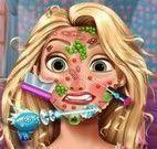 Tratamento do rosto da Rapunzel