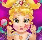 Princesa bebê cuidar dos machucados
