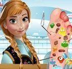 Anna Frozen cuidar do pé