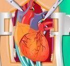 Cirurgia do coração