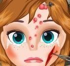 Anna cuidar do rosto machucado