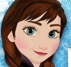 Anna Frozen machucados