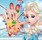 Cuidados com as mãos da Elsa