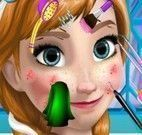 Anna Frozen limpeza facial profunda