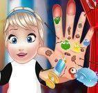 Cuidar da mão da Elsa bebê