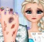 Elsa ferimentos no pé