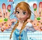 Mãos machucaas da Frozen Anna