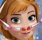 Anna médico do nariz