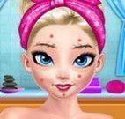 Tratamento facial da Elsa