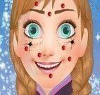 Anna Frozen limpeza de pele especial