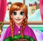 Pé ferido Anna Frozen